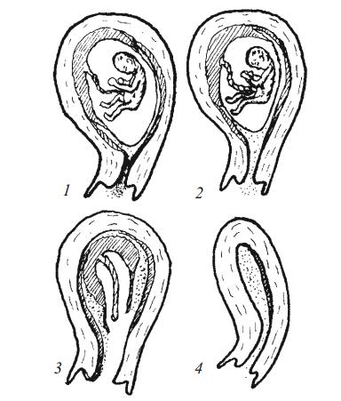 Классификация абортов