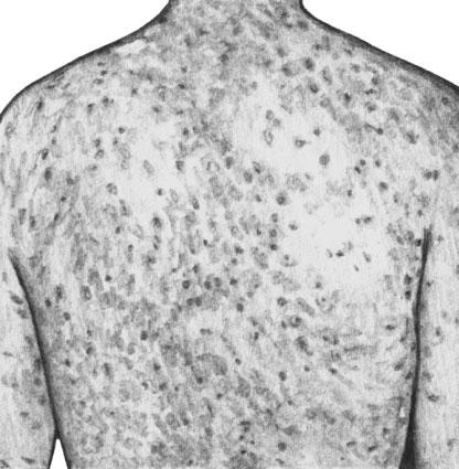 Корь. Геморрагическая сыпь на спине. Начало пигментации