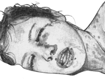 Корь. Синдром Стивена—Джонсона. Некротически-язвенное поражение слизистой оболочки рта, носа и глаз