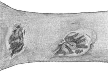 Кожный лейшманиоз (пендинская язва) на руке