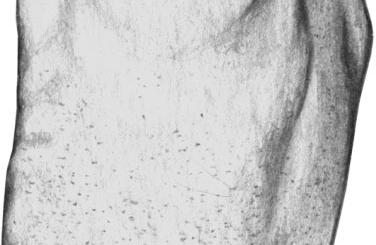 Краснуха. Мелкопятнистая сыпь на туловище