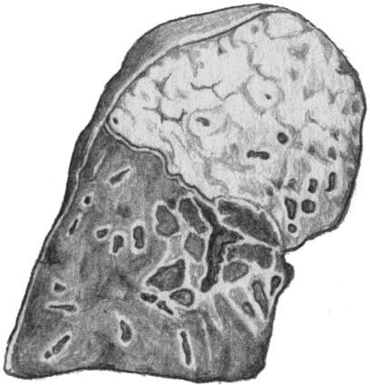 Крупозная пневмония верхней доли легкого; серое опеченение
