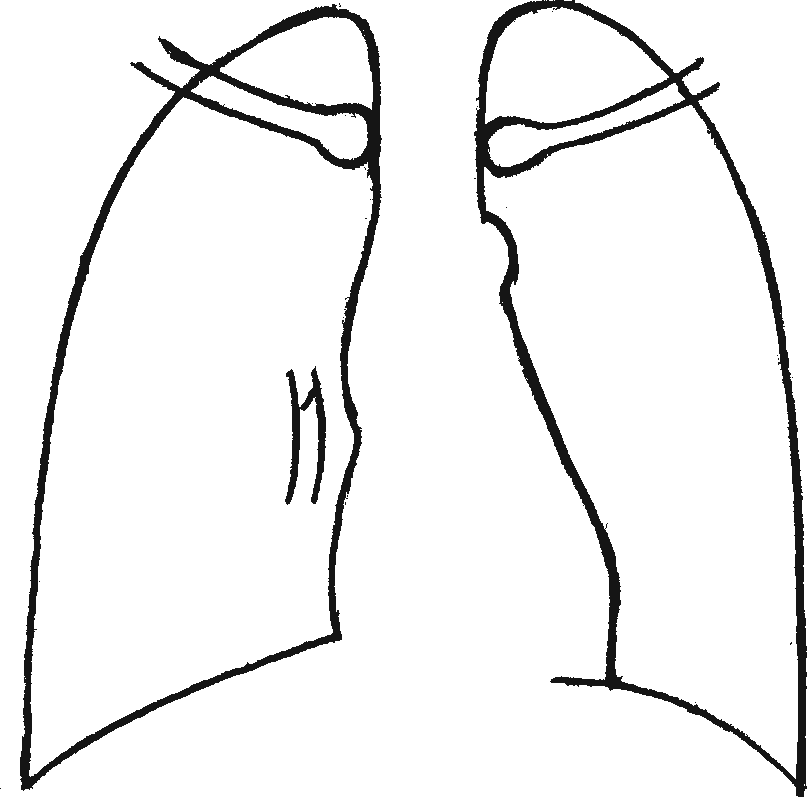 Легочное сердце в ранней стадии