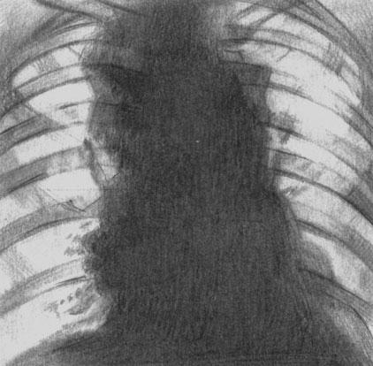 Лимфогранулематоз. Рентгенологическая картина при поражении лимфатических узлов средостения и корней легких