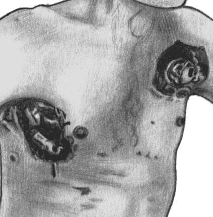 Лимфогранулематоз. Язвенно-некротическое поражение кожи