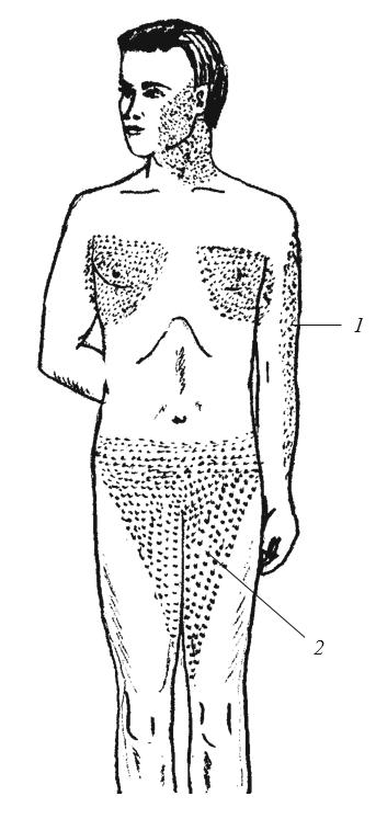 Локализация сыпи в продромальном периоде натуральной оспы