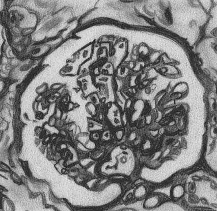 Мембранозно-фибропластический гломерулонефрит