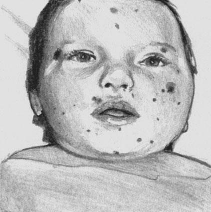 Менингококцемия. Геморрагическая сыпь на лице