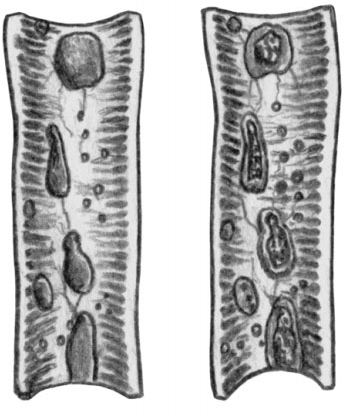 Набухание и некроз лимфатических образований в кишечнике