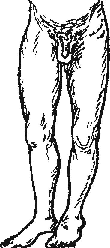 Надлобковый вывих бедра— положение конечности