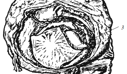 Окаменелый плод, пробывший в брюшной полости 14 лет