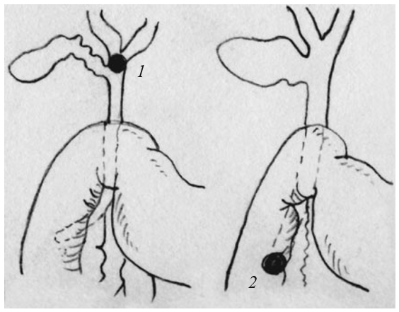 Переполнение желчных путей при закупорке больших желчных протоков