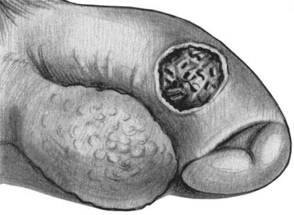 Первичная сифилома (эрозивная форма) на половых органах мужчины