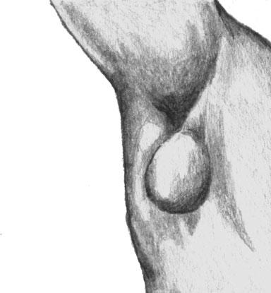 Подмышечный бубон при туляремии