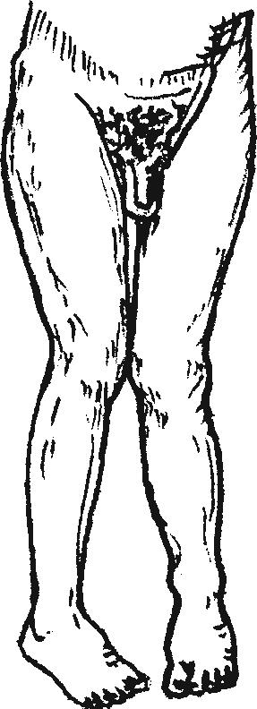 Подвздошный вывих бедра— положение конечности