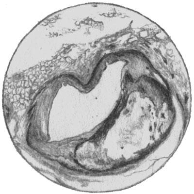 Поперечный разрез левой венечной артерии. Атеросклеротическая бляшка суживает просвет артерии.