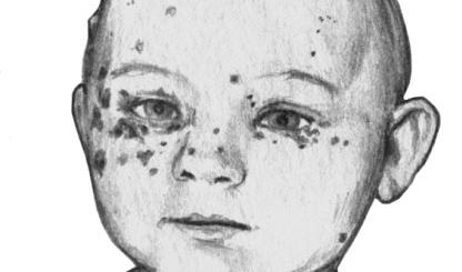 Поражение кожи (стафилодермия)