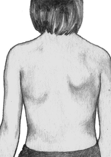 Поражения мышц плечевого пояса слева