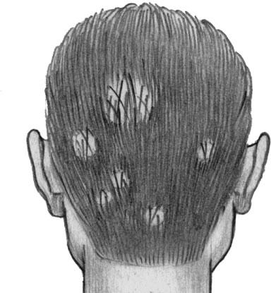 Поверхностная трихофития волосистой части головы