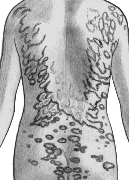 Распространенная трихофития гладкой кожи