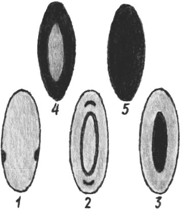 Различные виды катаракт