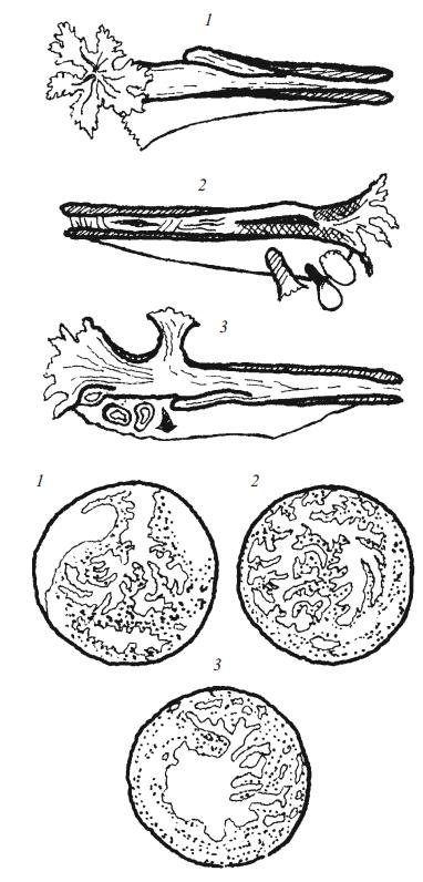 Различные виды расщепления просвета трубы, обнаруженные при внематочной беременности
