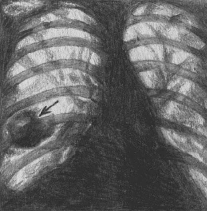 Рентгенограмма при множественной тромбоэмболии