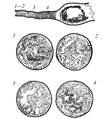 Резкое сужение просвета в ампуле трубы как причина ампулярной беременности