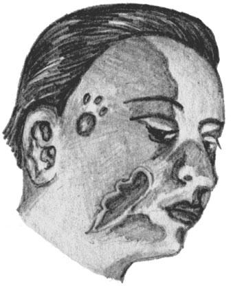 Рожа лица