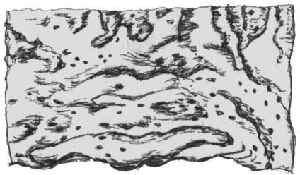 Рубцевание слизистой оболочки после перенесенной дизентерии