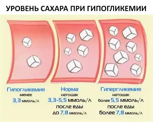 уровень сахара при гипогликемии