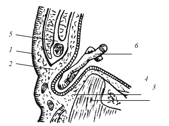 Схема бедренной грыжи