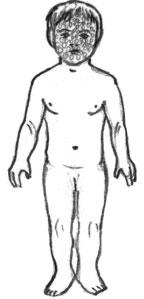 Схема этапности коревого высыпания у детей