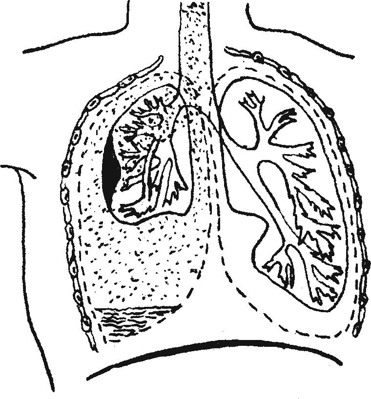 Схема гемоторакса и травматической эмфиземы— медиастинальная эмфизема