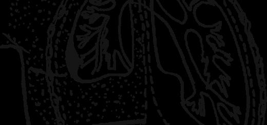 Схема гемоторакса и травматической эмфиземы — подкожная эмфизема