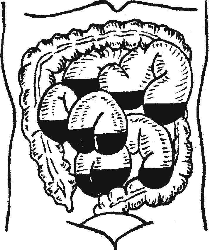 Схема горизонтальных уровней в тонких кишках при кишечной непроходимости