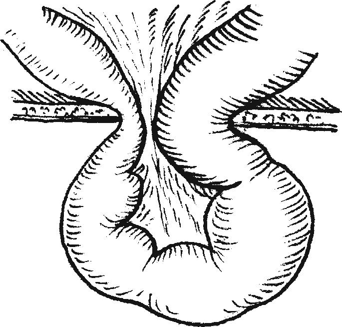 Схема механизма ущемления грыжи