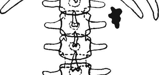 Схема рентгеновского снимка при лоханочном камне почки