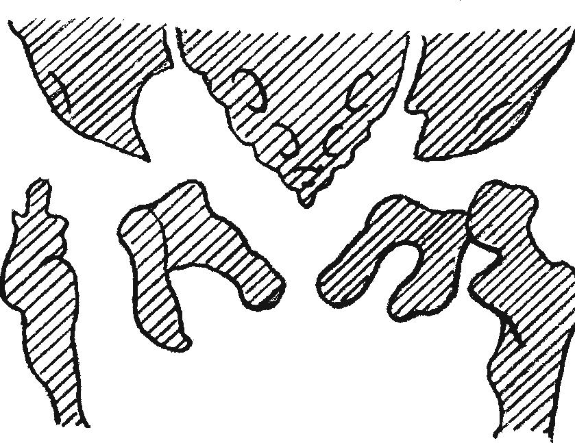Схема рентгеновского снимка при врожденном вывихе в правом тазобедренном суставе