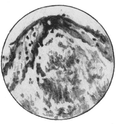 Сибиреязвенная пустула кожи. Масса бацилл в серозном экссудате
