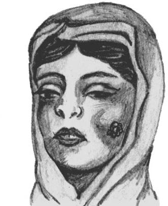 Сибиреязвенный карбункул на лице