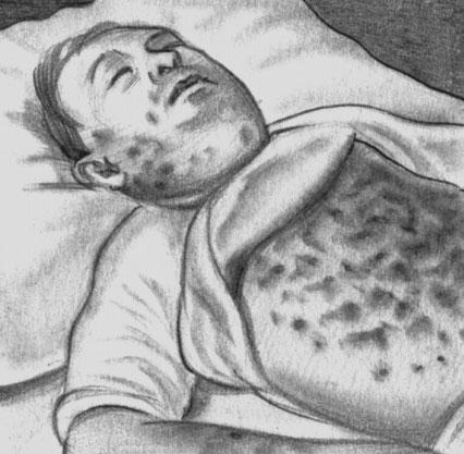 Специфическое поражение кожи при хроническом миелозе