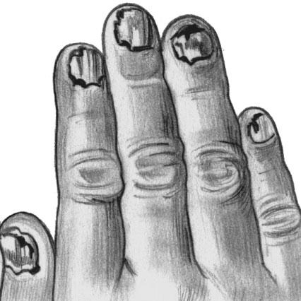 Трихофития ногтей