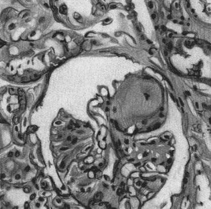 Узелковый тип диабетического гломерулосклероза