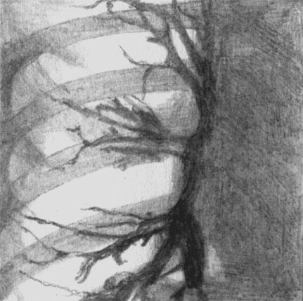 Веретенообразные бронхоэктазы