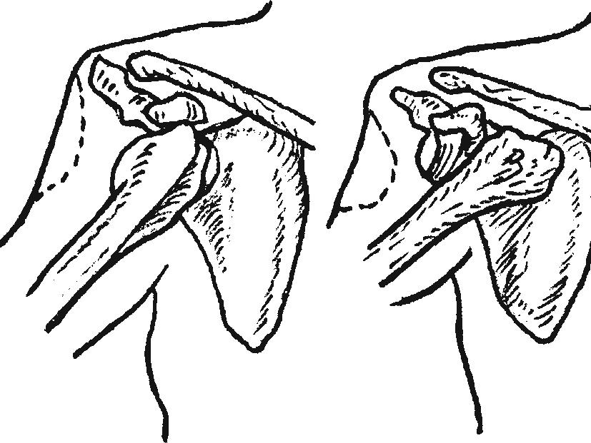 Виды передних вывихов плеча