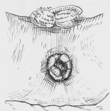 Воспаление наружных геморройных узлов