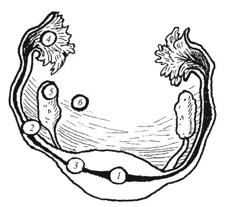 Возможная локализация внематочной беременности