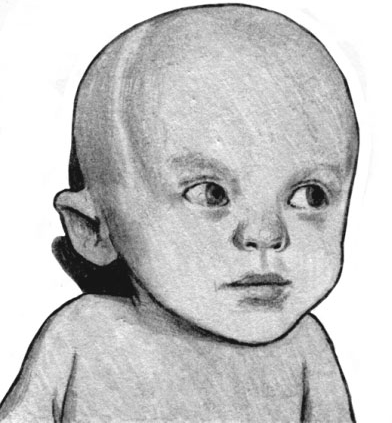 Врожденная цитомегалия. Гидроцефалия