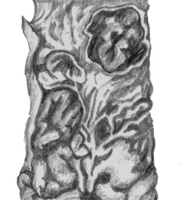 Язвы кишечника при брюшном тифе
